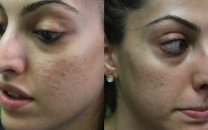 Treatment for Acne| Spectra Laser Results