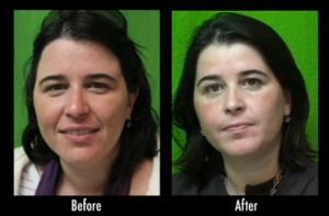 Los Angeles patient before and after acne scar treatment with laser