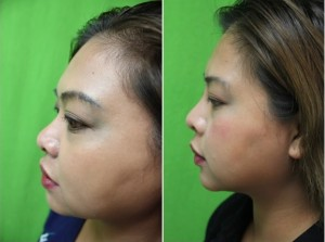 Non surgical nose job with Radiesse