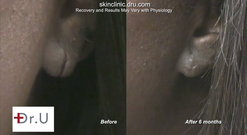 Split Earlobe Repair| Before and After Procedure