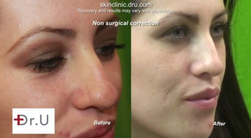 Non-Surgical Nose Job| Three Quarters View of Nose
