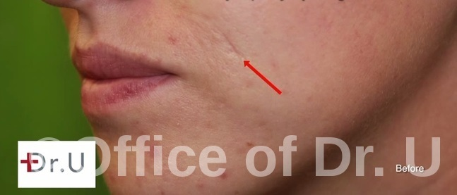 Profile View|Static Laugh Line Creases- Before Radiesse