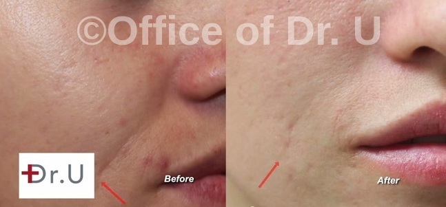Right Side of Face| Reduced Laugh Lines | Radiesse Treatment