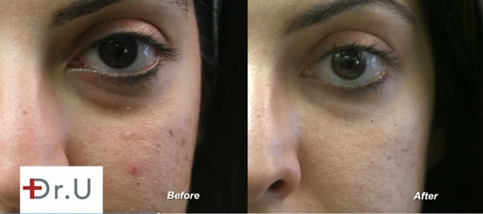 Close Up View| Eyebags & Dark Circles| Before and After Radiesse Treatment