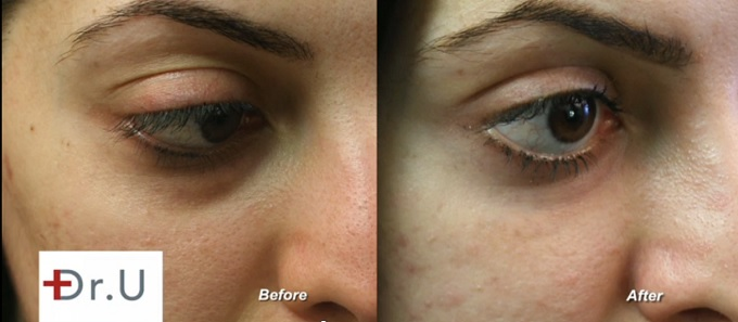 Undereye Hollows| Radiesse Treatment Results on Female Patient