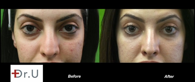 Acne Scarring/Under Eye Circles and Puffiness| Before & After Radiesse