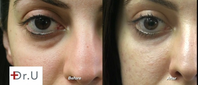 Left Eye View| Undereye Area - Before & After Radiesse Treatment Procedure