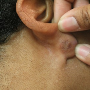 Earlobe keloid scar removal 1 year after surgical removal by Dr U