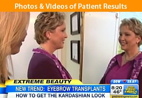 Good Morning America Eyebrow Transplant by Dr. Sanusi Umar