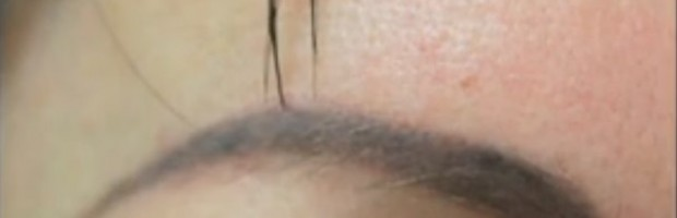 Tattooed Brows Before Transplantation With Nape Hair