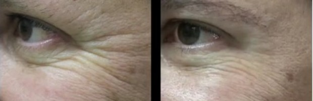 Wrinkle Removal Results  Los Angeles