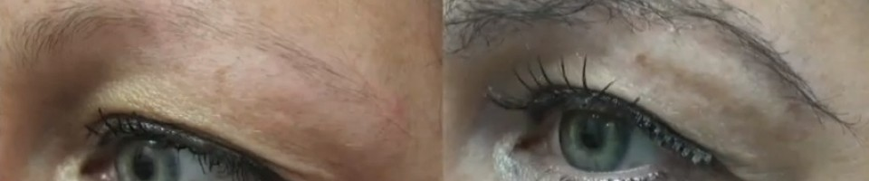 Eyebrow Hair Transplant Results - Los Angeles Patient