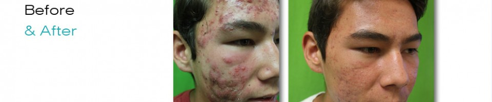 Severe Acne|Patient Before & After Treatment